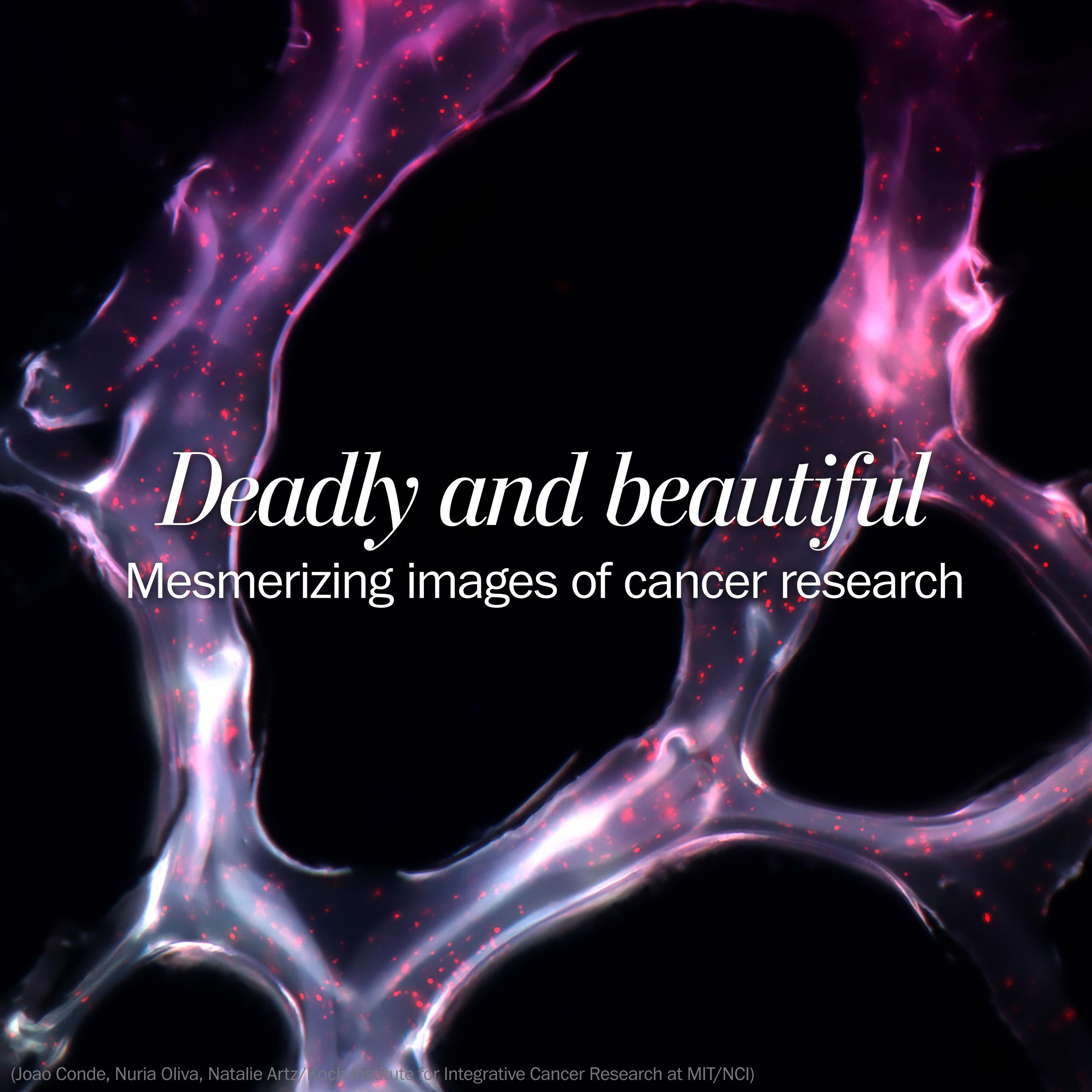 Deadly and beautiful: The mesmerizing images of cancer research
